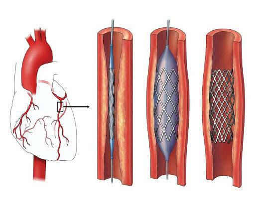 إجراء عملية رأب الأوعية التاجية في تركيا