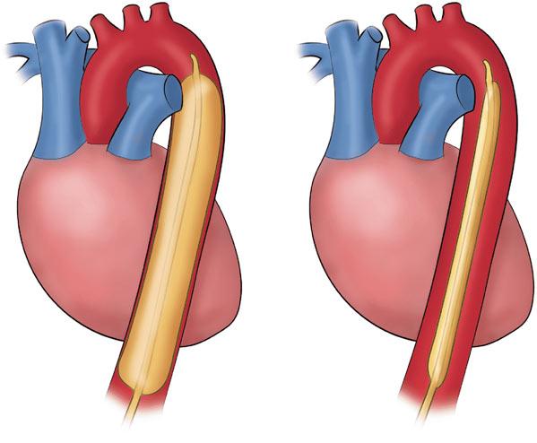 عملية مضخة القلب في تركيا