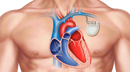 جهاز تنظيم ضربات القلب الدائم في تركيا