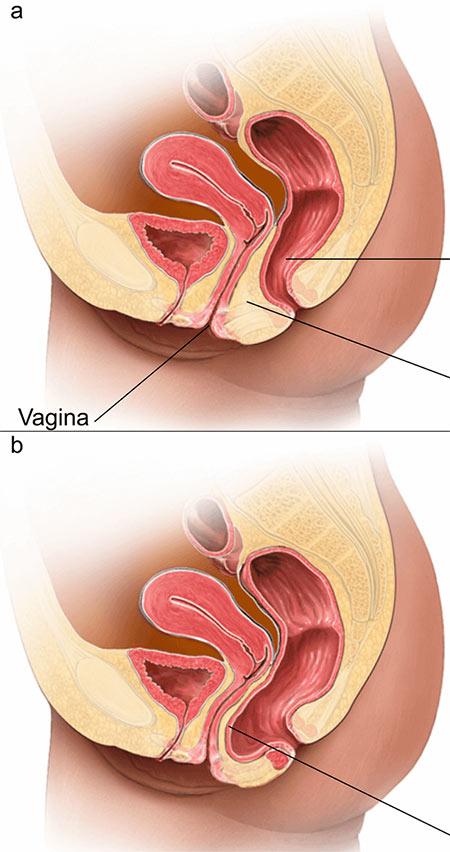 علاج هبوط الرحم في تركيا