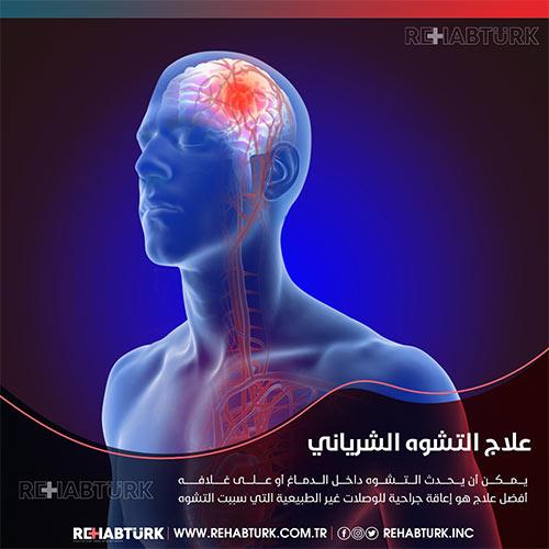 علاج التشوه الشرياني الوريدي الدماغي في تركيا