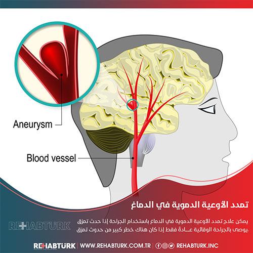 علاج تمدد الأوعية الدموية في الدماغ في تركيا