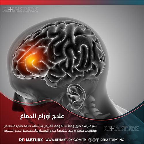 علاج أورام الدماغ في تركيا
