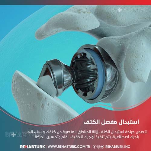 عملية استبدال مفصل الكتف في تركيا