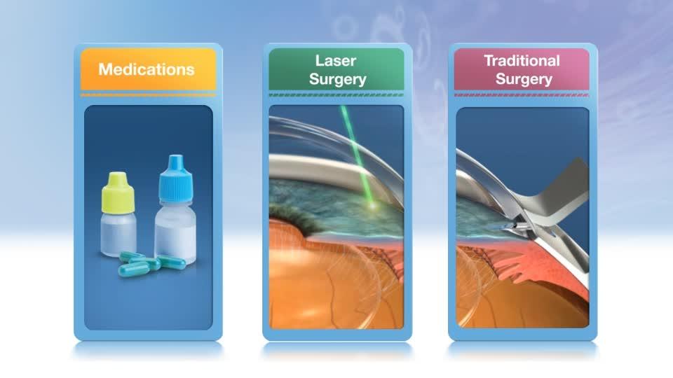 علاج الماء الزرقاء في العين
