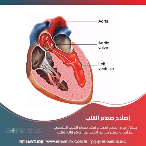 عملية إصلاح صمام القلب في تركيا