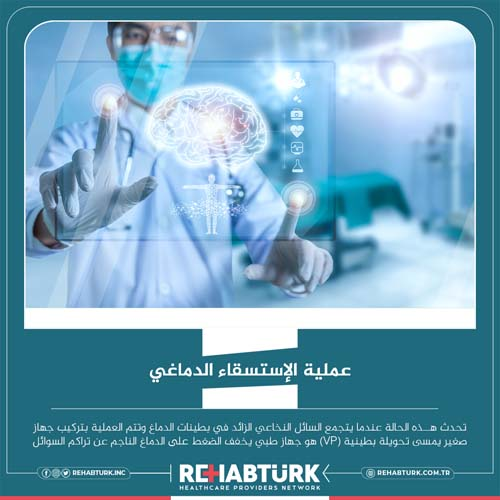 عملية الاستسقاء الدماغي في تركيا