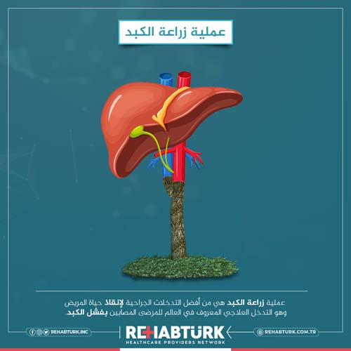 زراعة الكبد في تركيا