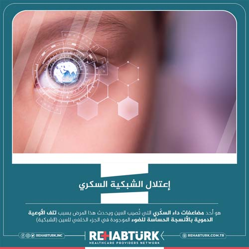 علاج اعتلال الشبكية السكري في تركيا