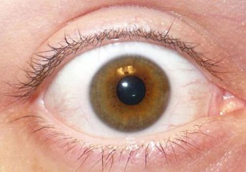 كيفية منع مشاكل العين