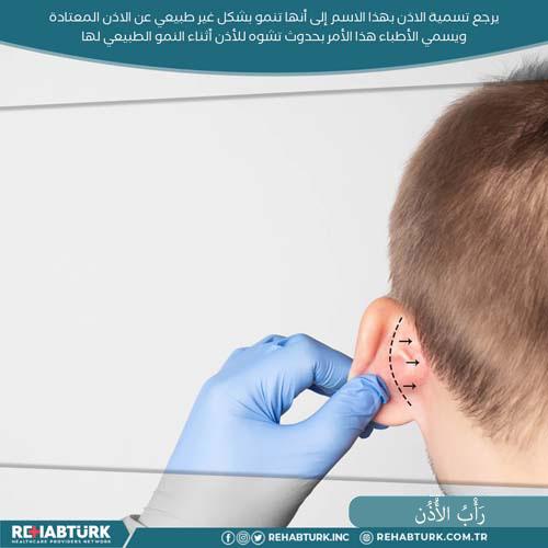 عملية تجميل الأذن في تركيا