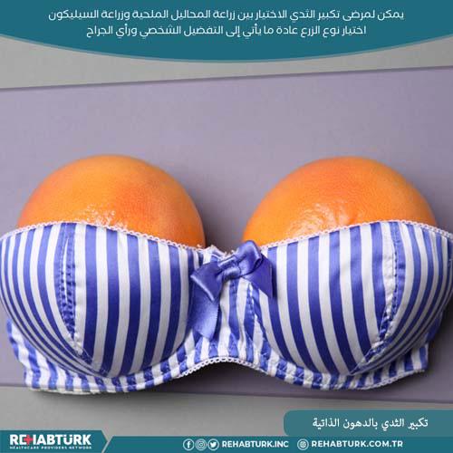 تكبير الثدي بواسطة نقل الدهون في تركيا