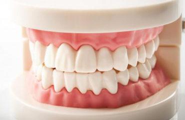 فرق الأسنان