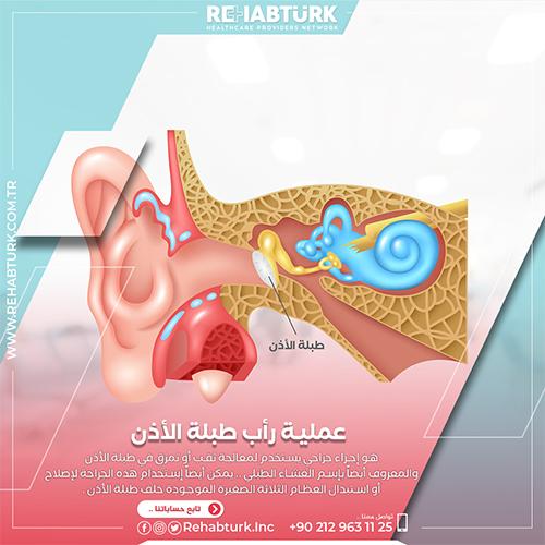 عملية رأب طبلة الأذن في تركيا